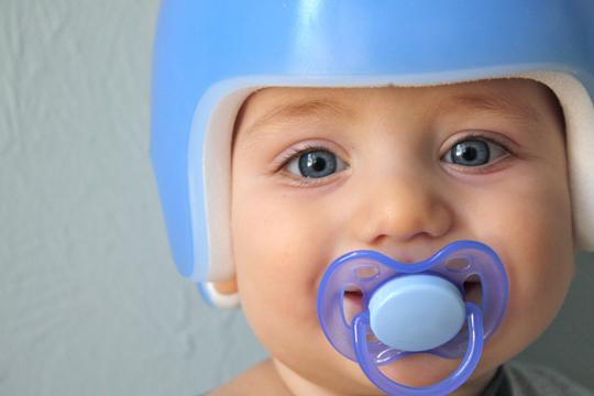baby cranial helmet
