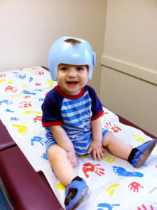 baby cranial helmet for plagiocephaly story
