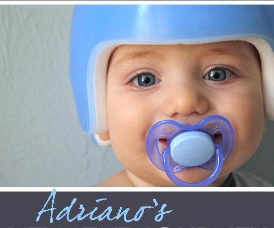 baby cranial helmet story