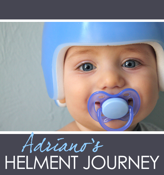Baby cranial helmet experience — detailed month by month — to correct plagiocephaly caused by torticollis