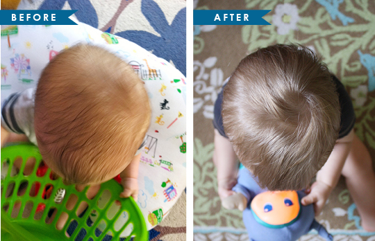 baby cranial helmet before and after pictures
